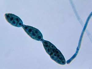 Chain_of_conidia_of_a_Alternaria_sp
